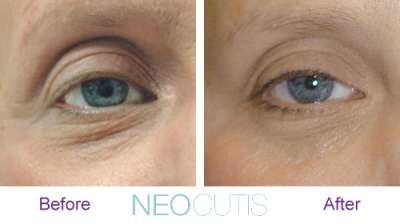 Neocutis Lumiere Eye Cream available at SkinMedix.com